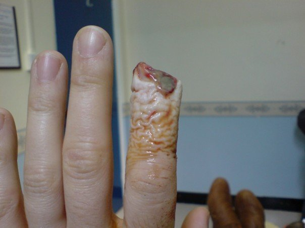 Fan Blade Inuries : Sliced finger in disc re constructive surgery on